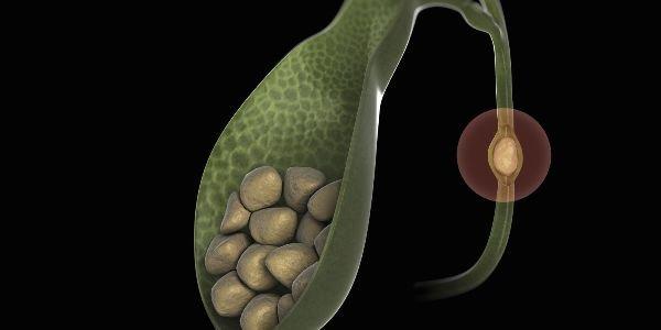 Правильное питание при образовании камней в желчном пузыре