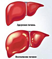 Как лечить хроническую форму гепатита B