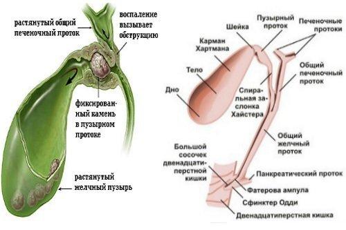 Лечение дисфункции сфинктера Одди