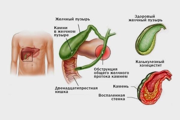 Особенности проведения ультразвукового исследования желчного пузыря