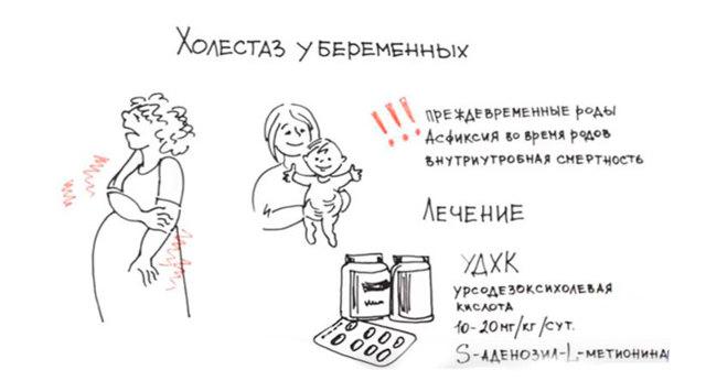 Застой желчи при беременности: что делать и чем он опасен