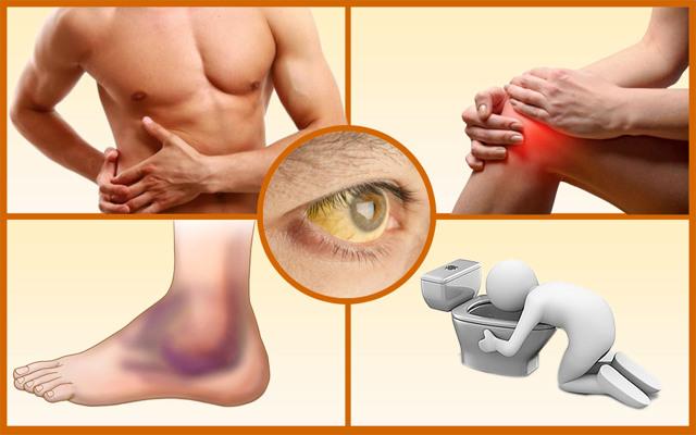 Токсическая форма гепатита – результат хронического отравления организма