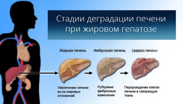 Эффективное лечение ожирения печени народными средствами