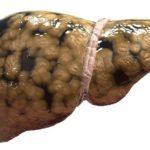 Признаки стеатоза и как его лечить