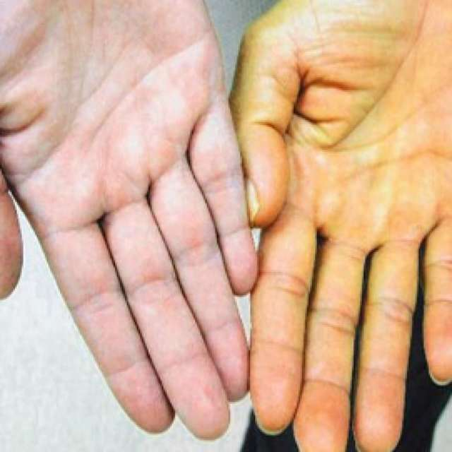 Расположение печени в организме у человека