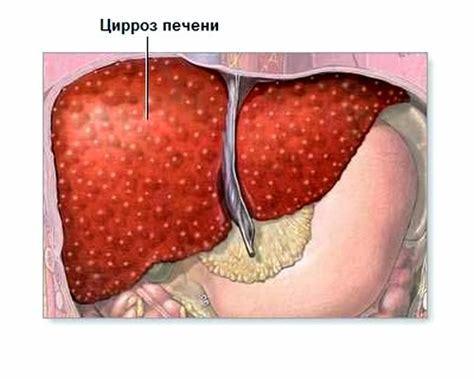 Какие бывают вирусные гепатиты и чем они опасны