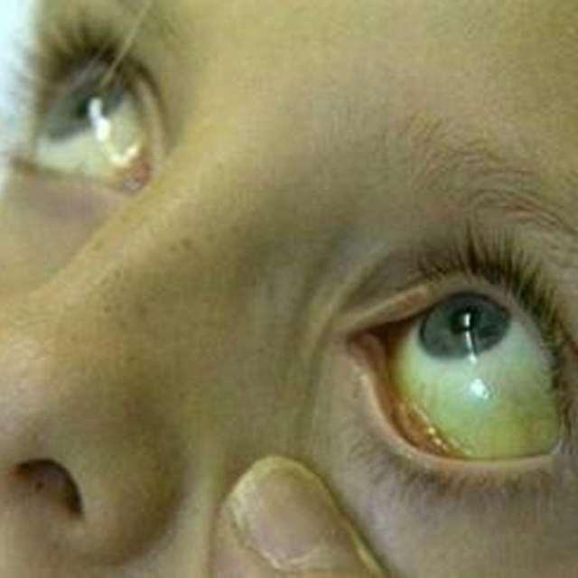 Причины, симптомы и прогноз при синдроме Жильбера
