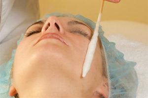 Причины появления и лечение печеночных пятен