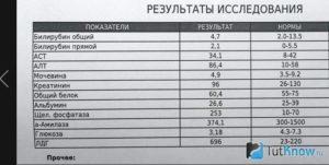 Нормальные показатели билирубина у мужчин: таблица по возрасту