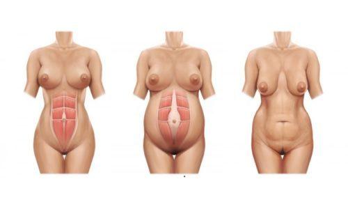 Грыжа белой линии живота при беременности - что делать?