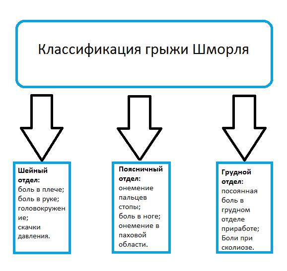 Грыжа Шморля (узлы Шморля) в позвоночнике: что такое, причины, лечение