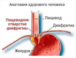 Скользящая грыжа пищевода: лечение