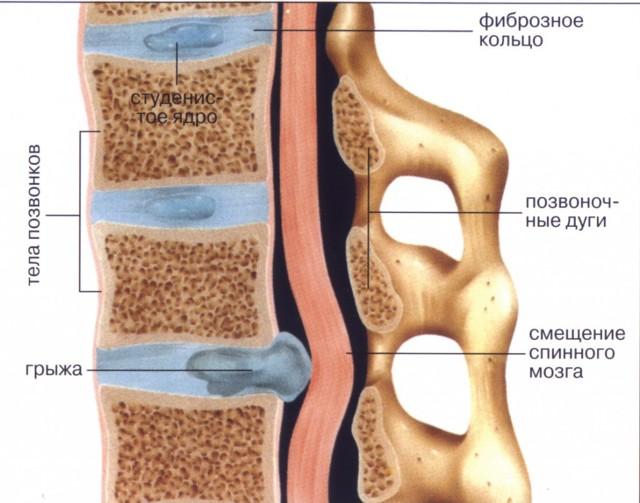 Грыжа позвоночника: симптомы и лечение