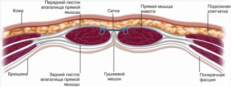 Послеоперационная грыжа: симптомы, методы лечения