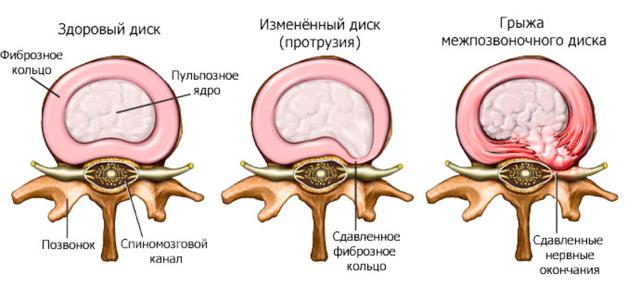 Парамедианная грыжа: симптомы и лечение (l4 l5, l5 s1, c5 c6 и др.)