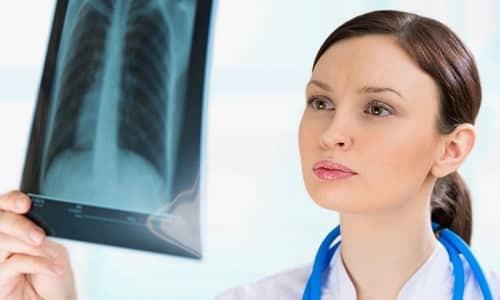 Видно ли грыжу позвоночника на рентгене: необходимость рентгенографии, что покажет, подготовка, когда обследование нежелательно, передовые технологии