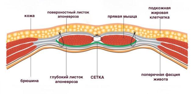Вентральная грыжа: лечение, установка сетки