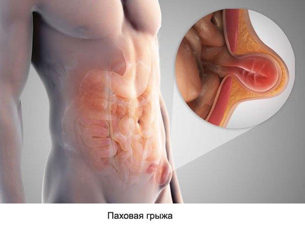 Признаки грыжи живота: как болит, диагностика