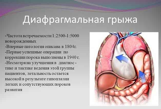 Грыжа диафрагмальная у новорожденных: врожденное выпячивание у детей