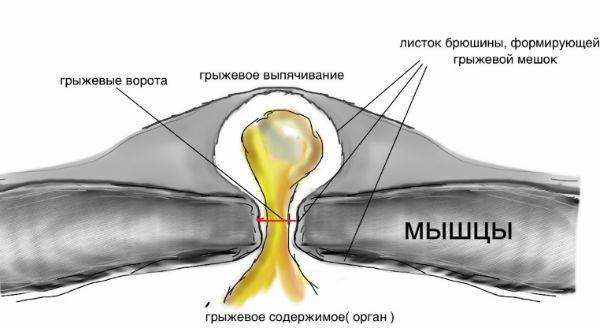 Послеоперационная грыжа брюшной полости