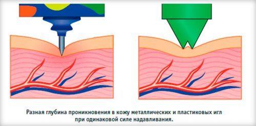 Аппликаторы кузнецова и ляпко при грыже шейного отдела: принцип воздействия, виды изделий, плюсы и минусы, показания, противопоказания, отзывы