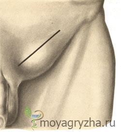 Лечение паховой грыжи без операции: лечебная мазь