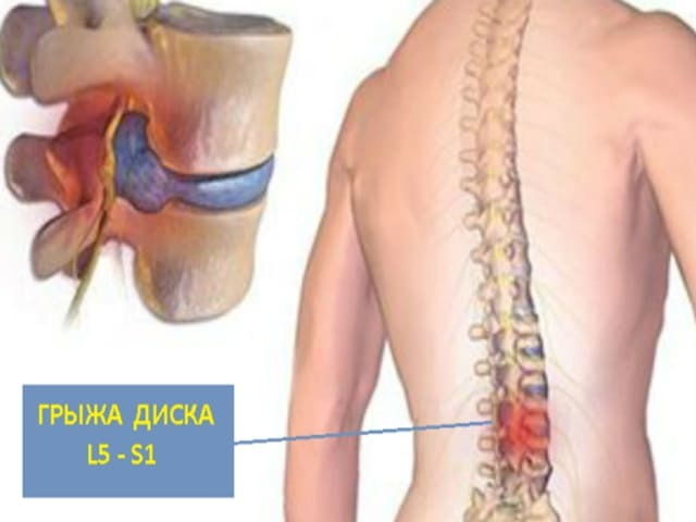 Грыжа диска l5 s1 (секвестированная, медианная): симптомы, лечение