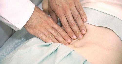 Грыжа после аппендицита: причины появления, симптомы, диагностика, лечение послеоперационной грыжи, профилактика осложнений
