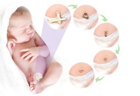 Грыжа у новорожденных: причины, симптомы и лечение