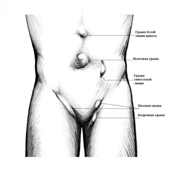 Грыжа живота у женщин: признаки, симптомы