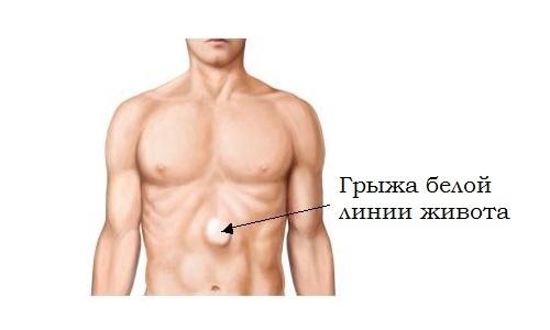 Грыжа белой линии живота: симптомы, признаки, варианты лечения (фото)