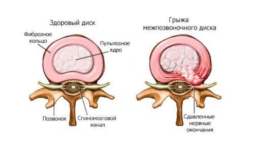 Ортопедический матрас при межпозвоночной грыже: важность, общие критерии выбора, виды наполнителей, профилактика заболевания
