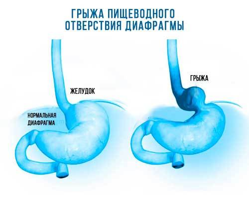 Грыжа пищеводного отверстия диафрагмы: диета