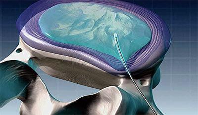 Холодноплазменная нуклеопластика: операция, последствия, отзывы