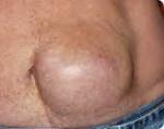 Симптомы грыжи на животе: лечение