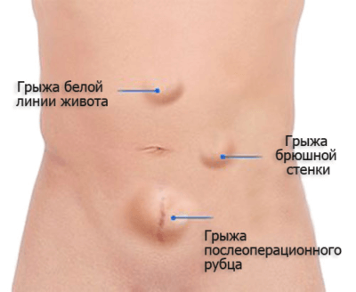 Операция по удалению грыжи белой линии живота у детей: причины, симптомы, показания, герниопластика (натяжная, ненатяжная), реабилитация, отзывы