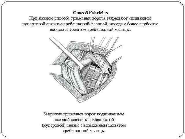 Пластика бедренной грыжи: причины, симптомы, показания, способы удаления, виды пластики грыжевых ворот, подготовка к удалению, реабилитация, отзывы