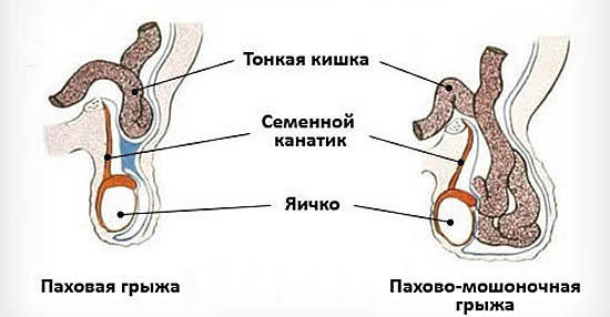 Ущемленная паховая грыжа у детей: причины, симптомы, диагностика, последствия, операция, послеоперационное лечение, профилактика