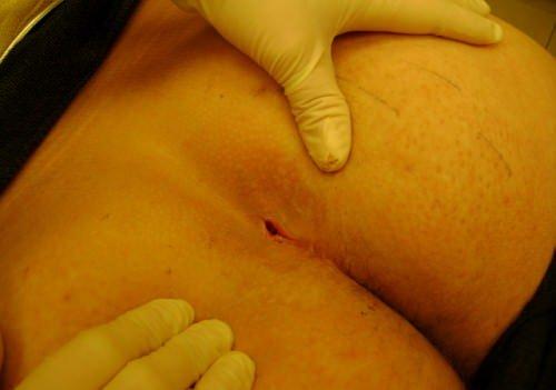 Копчиковая грыжа: симптомы, способы лечения, последствия