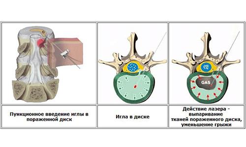 Лечение грыжи позвоночника лазером: вапоризация грыж