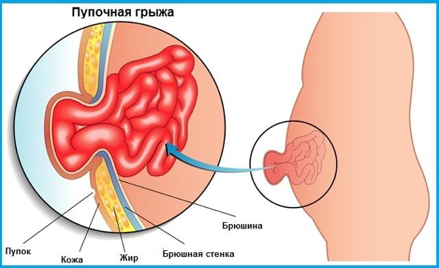 Пупочная грыжа: симптомы и лечение
