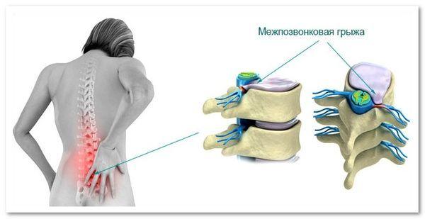 Грыжа межпозвоночного диска: симптомы, лечение