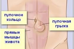 Диагностика пупочной грыжи: симптомы, обследование