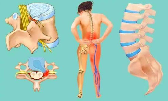 Грыжа поясничного отдела позвоночника: симптомы и лечение поясничной грыжи