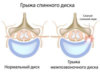 Секвестрированная грыжа поясничного отдела позвоночника: лечение