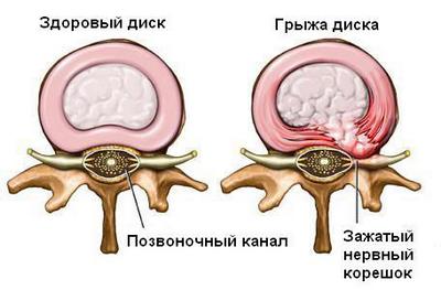 Как лечить грыжу без операции?