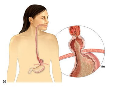 Грыжа пищевода: симптомы, диета, лечение