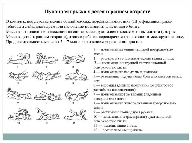 Упражнения при пупочной грыже у взрослых: зачем нужна гимнастика, общие правила, комплекс упражнений, восстановление после операции, профилактика