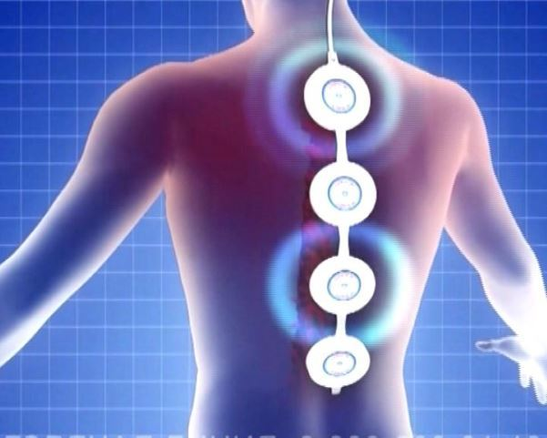 Магнитотерапия при грыже поясничного отдела позвоночника: показания, преимущества и недостатки, принцип действия, противопоказания