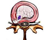 Диффузная грыжа межпозвонкового диска: причины образования, симптомы, методы диагностирования, лечение, профилактика заболевания